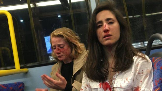 Namoradas são agredidas após se recusarem a se beijar em Londres  - Imagem 1