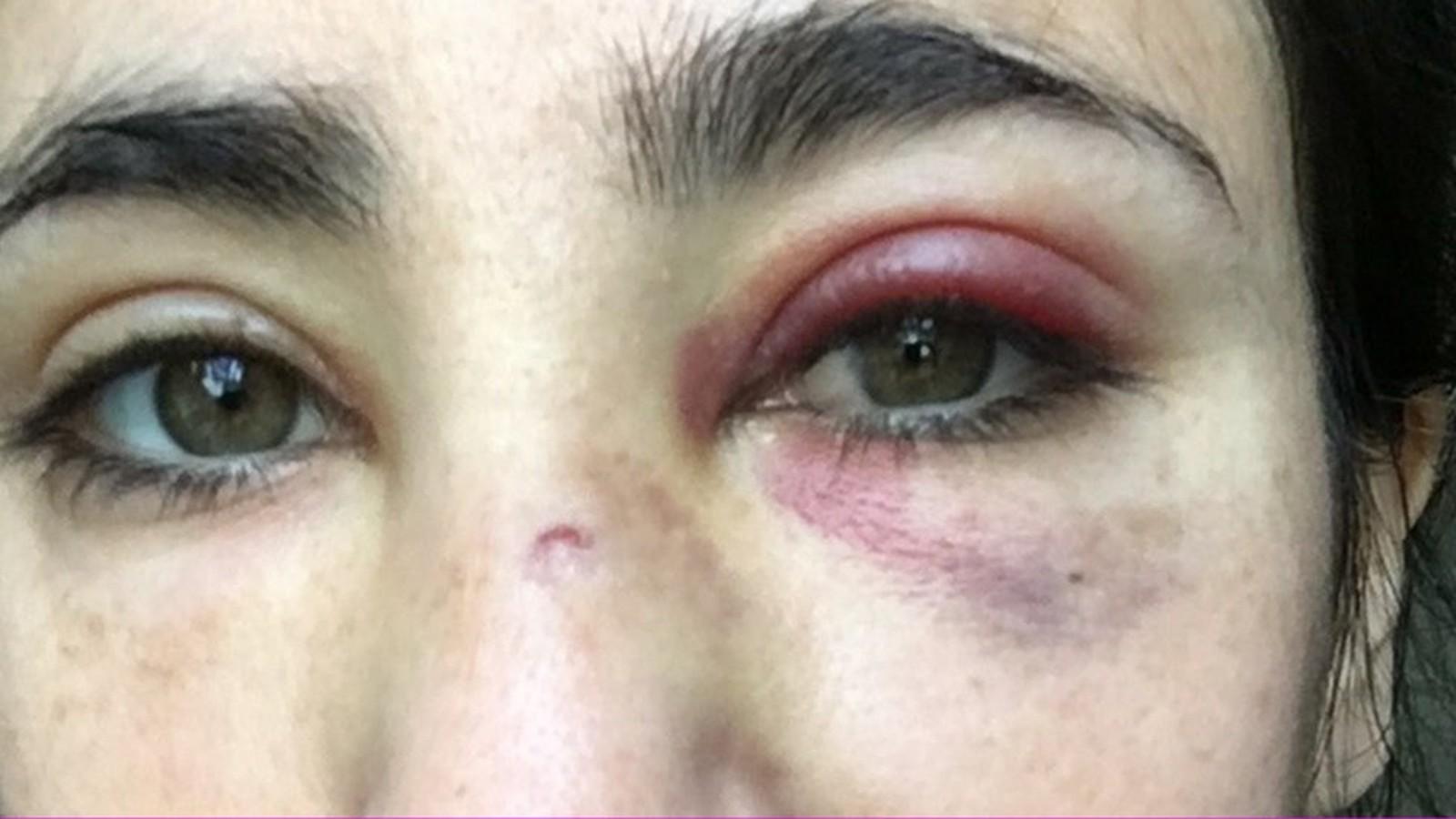 Polícia de Londres prende 5º suspeito de agredir lésbicas em ônibus - Imagem 2