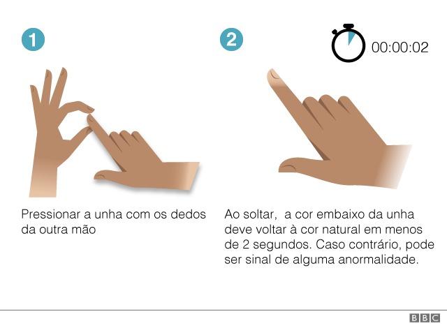 Ilustração mostra movimentos que devem ser feitos no teste de refil capilar