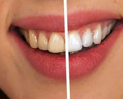 Os benefícios da lente de contato dental
