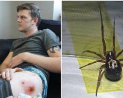 Picada de Aranha sinistra deixa homem sem andar por 2 meses