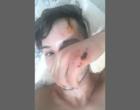 """GO: """"Sobrevivi"""", diz jovem gay espancado e estuprado após Parada Gay"""