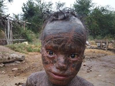 """Resultado de imagem para Imagens fortes: Condição rara deixa garoto com """"pele de cobra"""""""