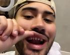 Kevinho viraliza ao aparecer sem as lentes de contato dos dentes