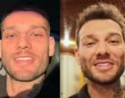 Harmonização Facial: qual é o limite na busca para atingir um padrão?
