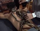 Cobras oferecem serviços terapeuticos nas costas de pacientes; vídeo