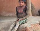 """Doença rara faz pele de menina virar """"pedra"""" e dificulta locomoção"""