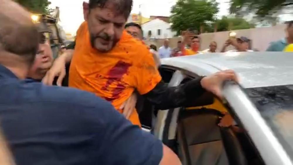 CE:Cid Gomes tenta entrar em batalhão com retroescavadeira e é baleado - Imagem 2