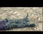 Cobra venenosa sai de calça de homem após picá-lo; Vídeo