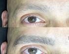 Micropigmentação vira febre entre homens