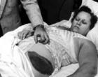 Conheça a história da mulher que foi atingida por um meteorito