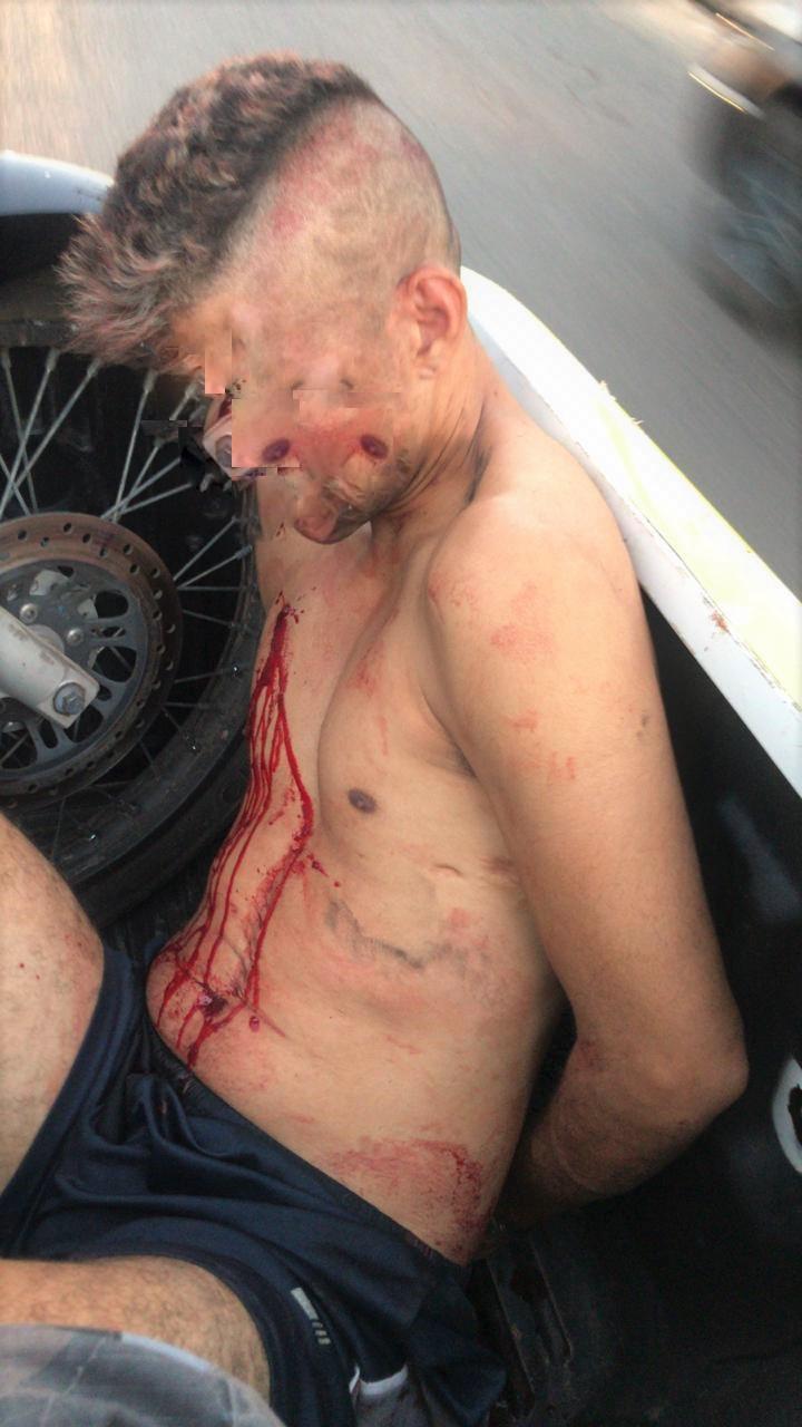 Vítima sofreu agressão física por populares