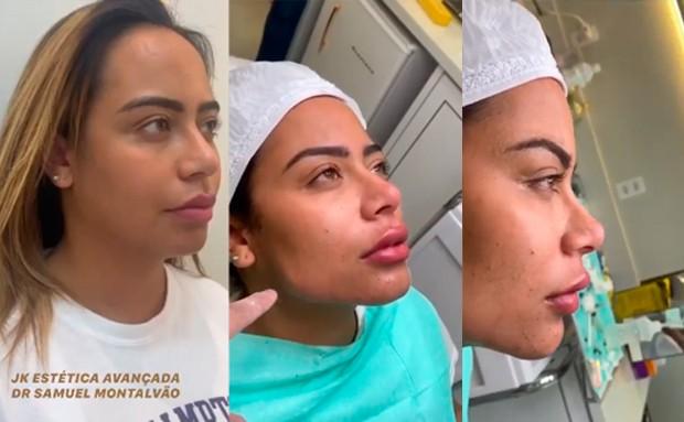 Rafaela Santos faz procedimento estético de remodelação facial - Foto: Reprodução
