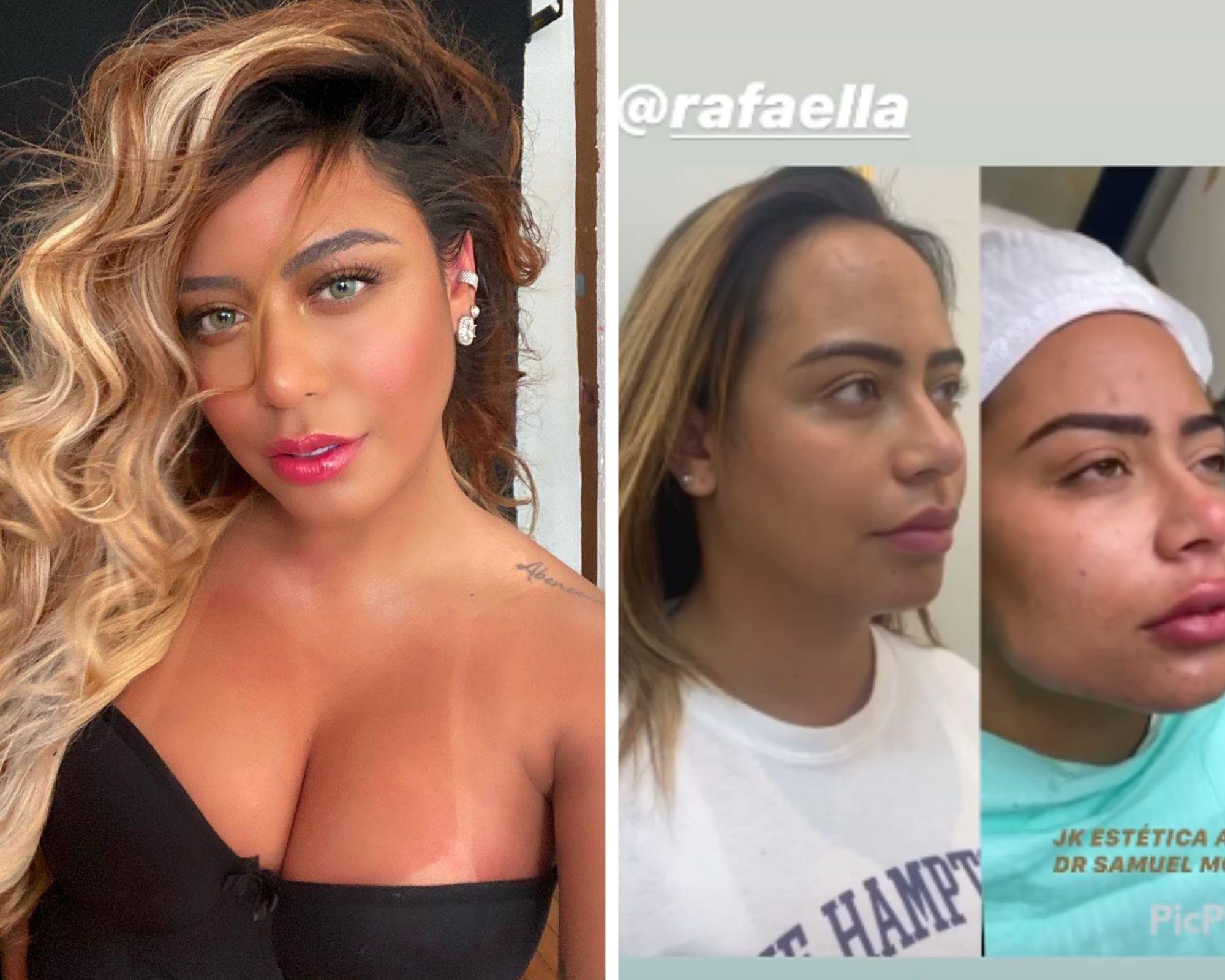 Médico mostra antes e depois de remodelação no rosto de Rafaela Santos - Imagem 1