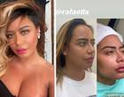 Rafaella Santos checa resultado de remodelação facial; confira