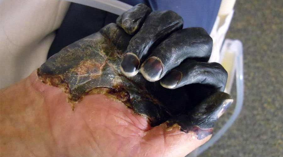 Marmota, uma espécie de rato, na Mongólia causou um novo surto de peste bubônica- Foto: Efeitos da doença/Jornal CiênciaMarmota, uma espécie de rato, na Mongólia causou um novo surto de peste bubônica- Foto: Efeitos da doença/Jornal Ciência