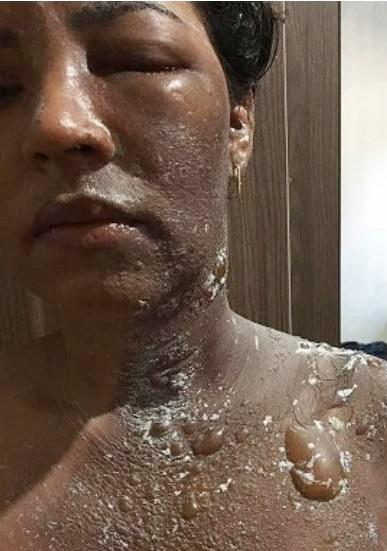 Vereadora Dudu Coelho tem rosto queimado pelo marido