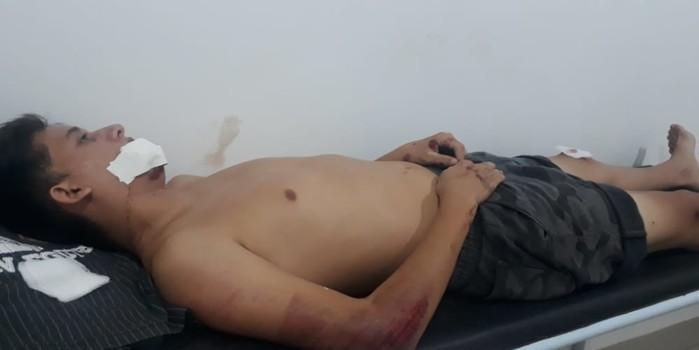 Jovem sofre acidente de moto no interior do Piauí
