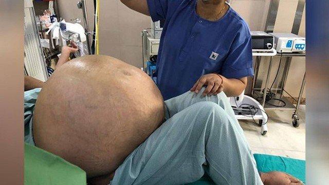 Ovário com tumor de 50 quilos