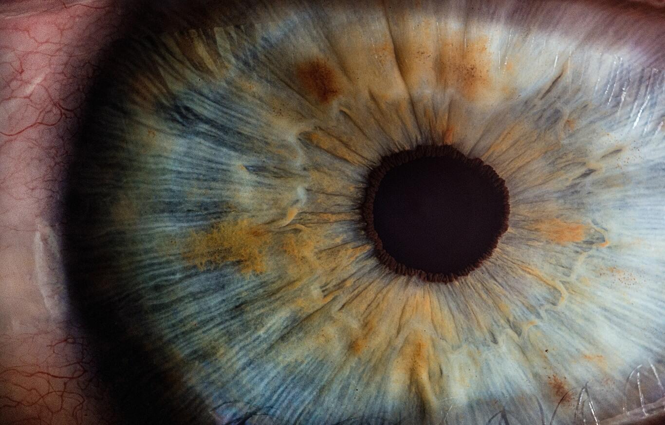 pupilas são alteradas (foto: pixabay)