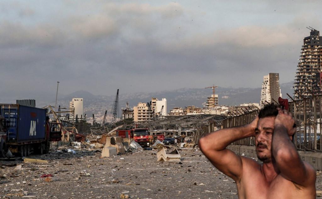 Cerca de 5 mil pessoas ficaram feridas - Crédito: Reuters, Anwar Amro/AFP e Ibrahim Amro/AFP