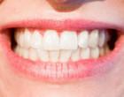 Alimentos mancham os dentes?