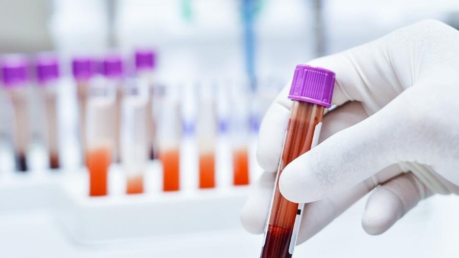 Exame de sangue - Imagem: kukhunthod/IStock