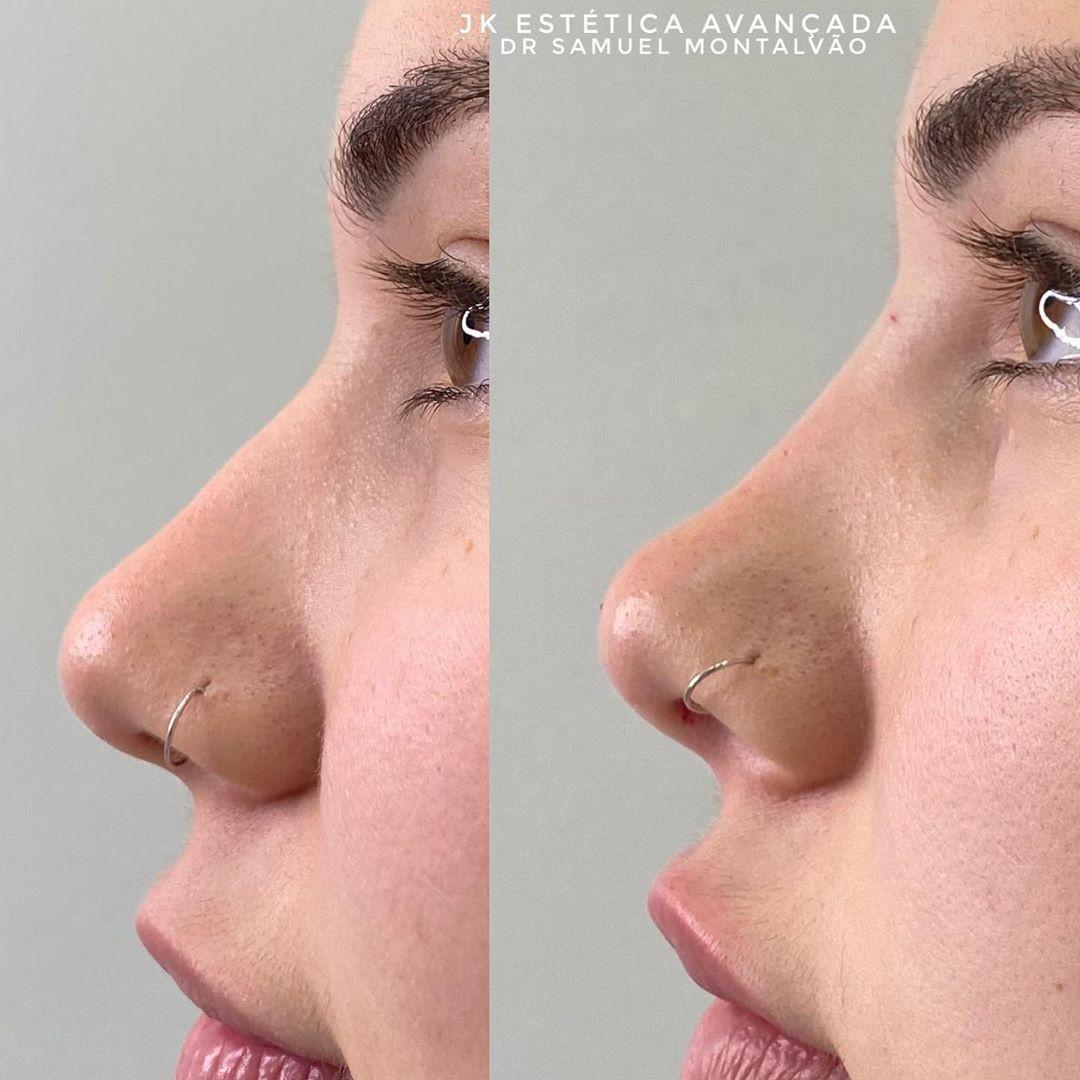 Após lipo, Virgínia faz procedimento no rosto e fica com boca inchada - Imagem 2