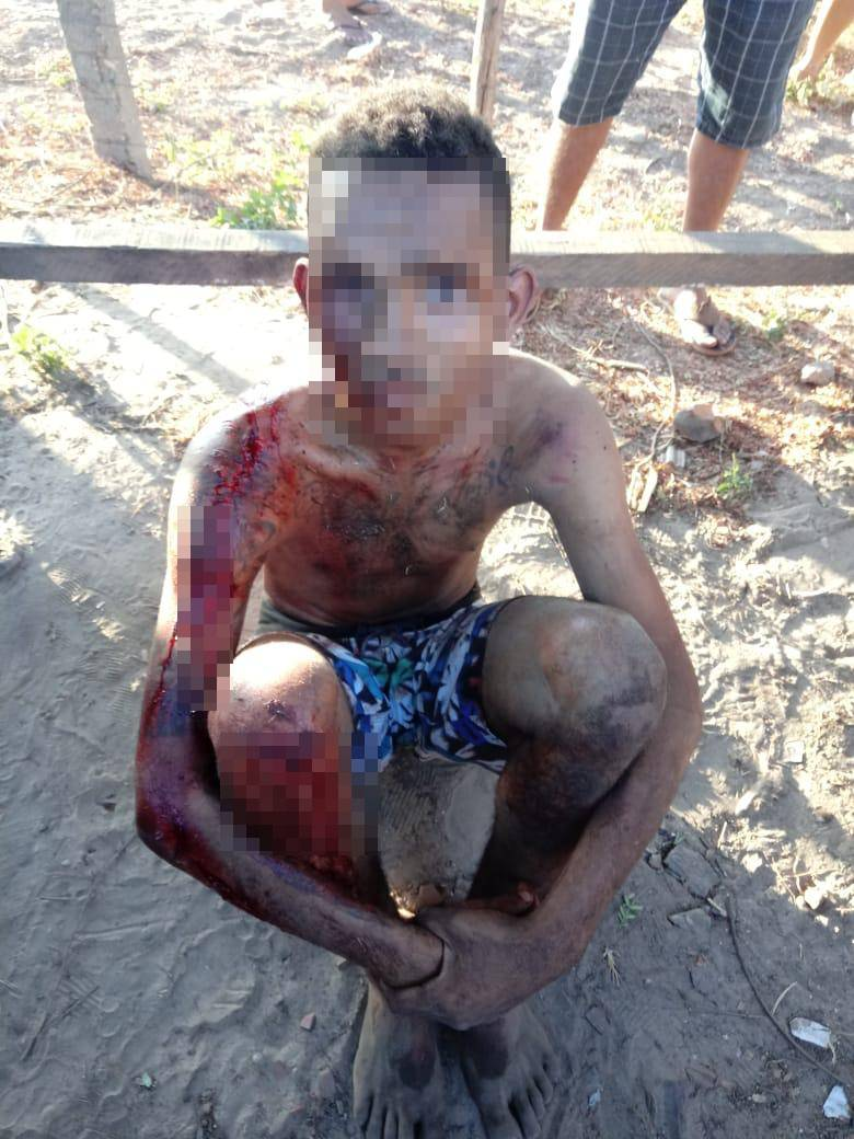 Menor envolvido no assalto foi atendido pelo SAMU e levado ao HUT (Reprodução)