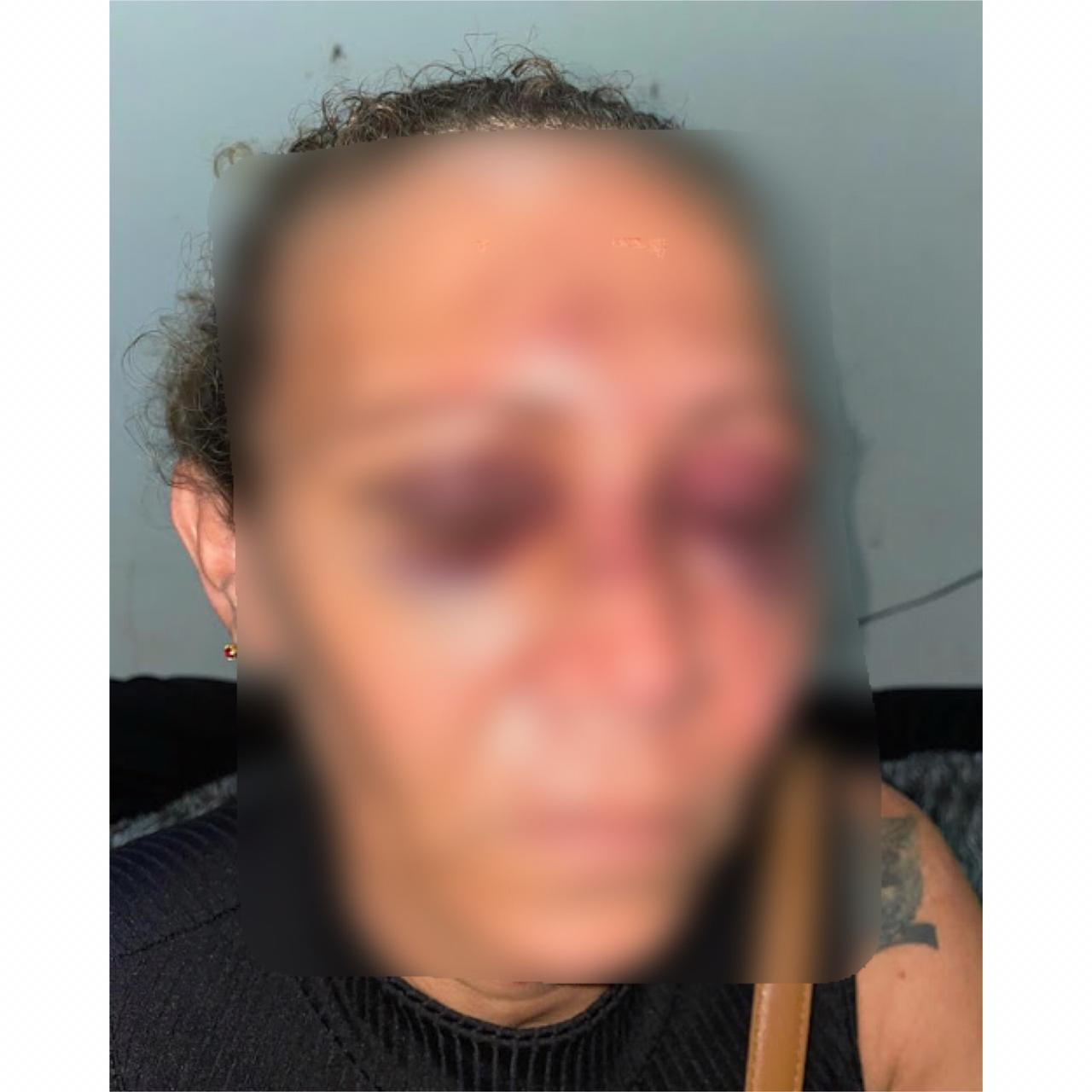 Vítima de tentativa de feminicídio em Caxias