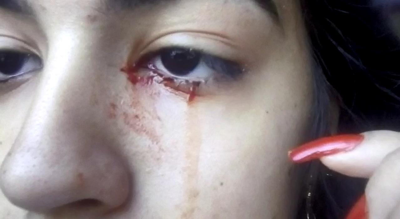 Adolescente pede ajuda médica após chorar sangue