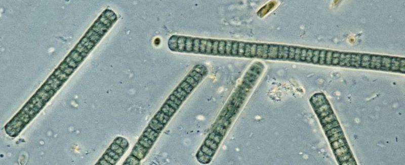 Osciliatoria, uma cianobactéria, vista ao microscópio (Imagem: Getty)