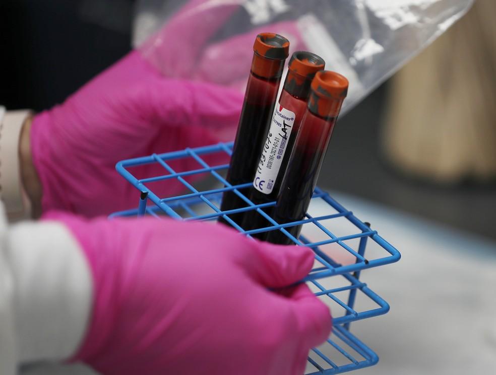 Amostras de sangue de pacientes na Flórida no dia 7 de agosto
