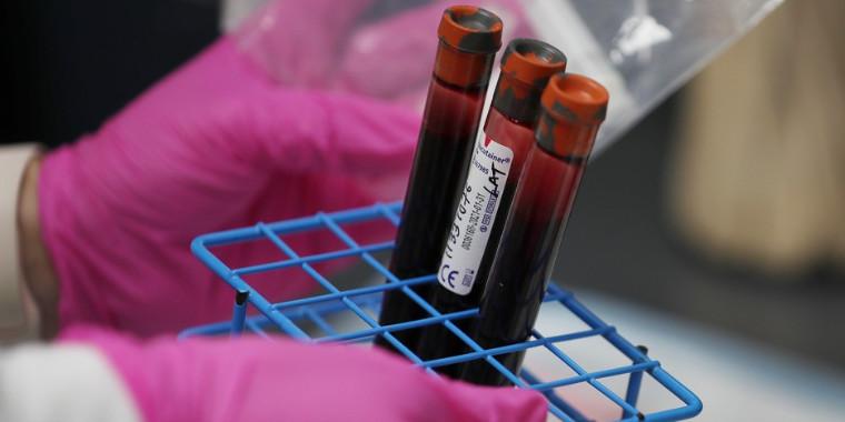 Testes rápido para a covid-19 serão distribuídos em 133 países