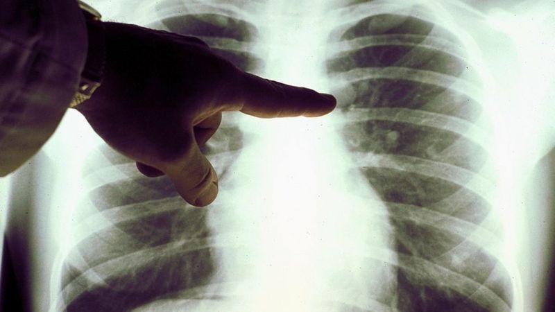 Sem medicação específica adicional, linfoma de paciente que contraiu a Covid-19 desaparece (Foto: Getty Images)