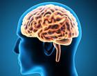 Covid-19 pode alterar o padrão de conectividade funcional do cérebro