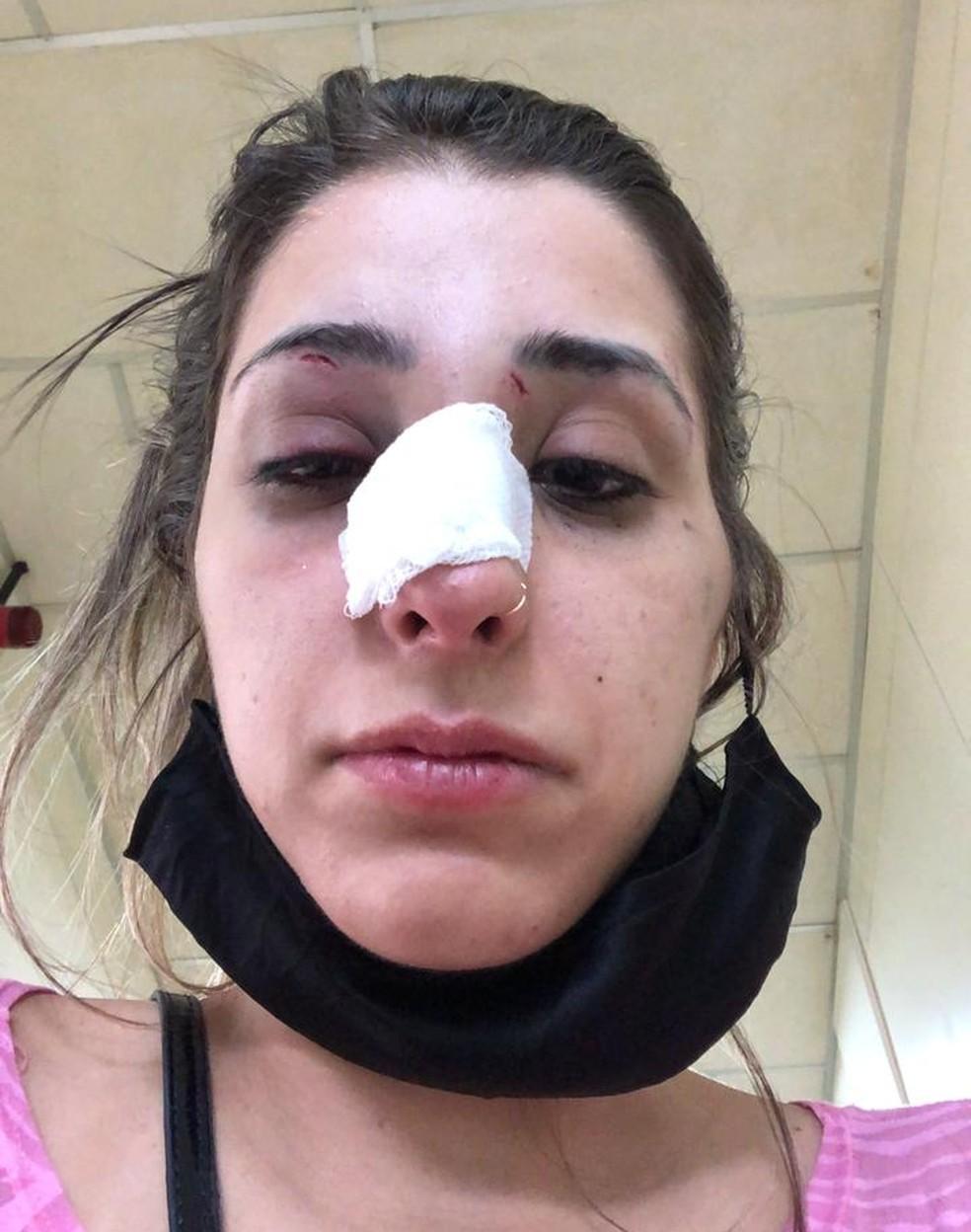 Jovem quebrou o nariz durante as agressões