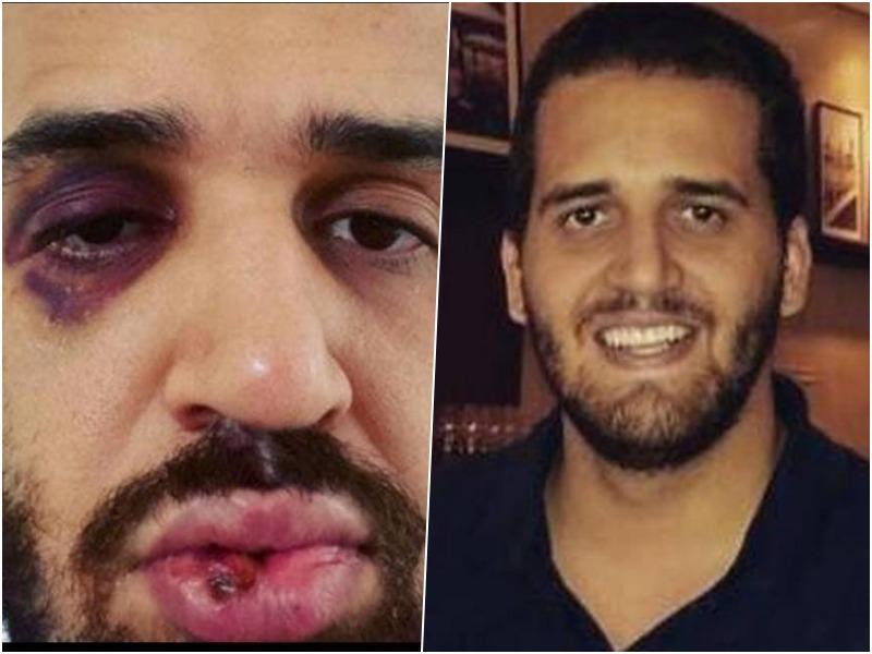 Médico José Eduardo Panini foi espancado por cunhado