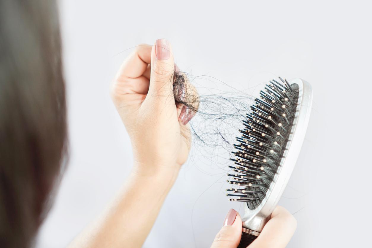 Uma queixa percebida foi a queda de cabelo/crédito:reprodução internet
