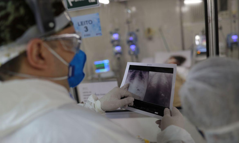 Pulmões são afetados pelo vírus.Crédito: Agência Brasil.