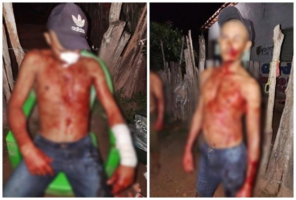 Lavrador foi atingido a golpes de faca - Foto: Reprodução
