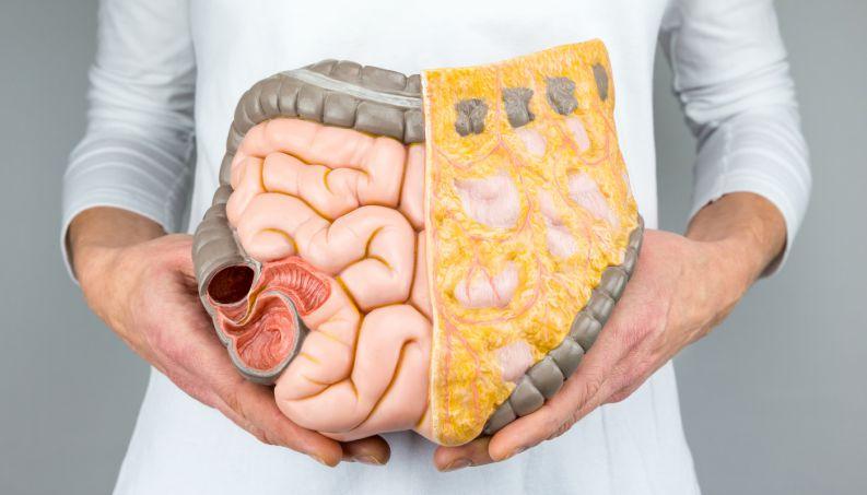 Alimentação pdoe influenciar na Síndrome do Intestino Irritável/Reprodução internet