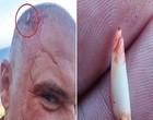 Pescador atacado por tubarão tem dente cravado na cabeça; vídeo