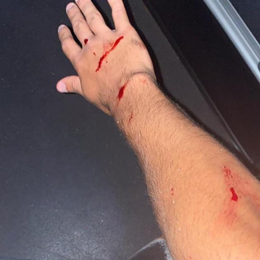 Os estilhaços de vidro cortaram o braço do meia Locatelli. Em nota, o Ponte Preta lamentou o o corrido- Foto: Redes sociais