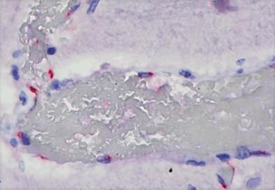 Ação direta da Covid-19 pode causar reação imune em crianças - Imagem 1