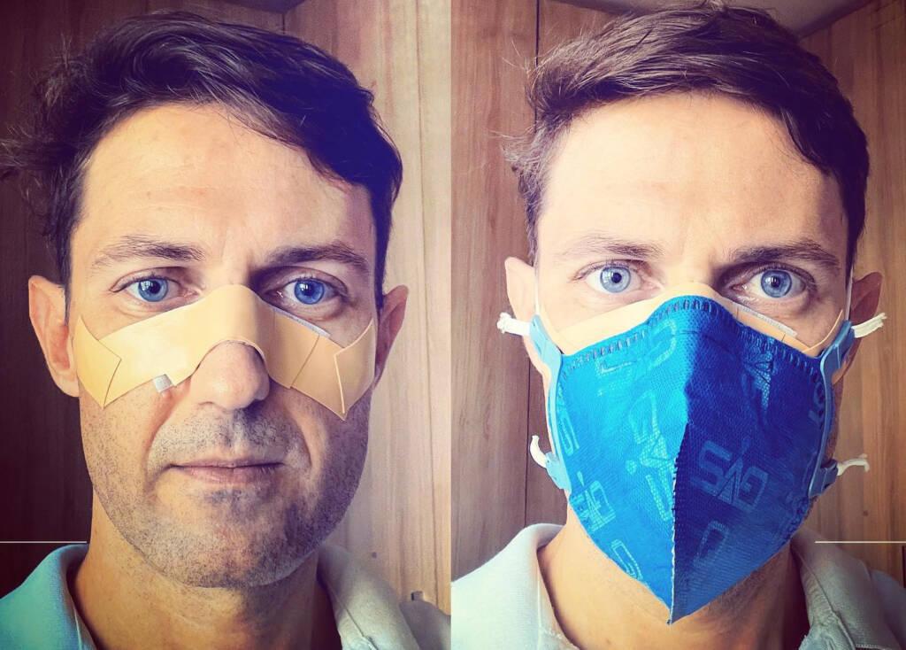 Dr. Artur Milach usa curativo no rosto devido o uso excessivo de máscara (Foto: Arquivo Pessoal)