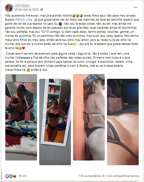 Mulher resolveu mostrar tudo nas redes sociais (Foto: Reprodução)