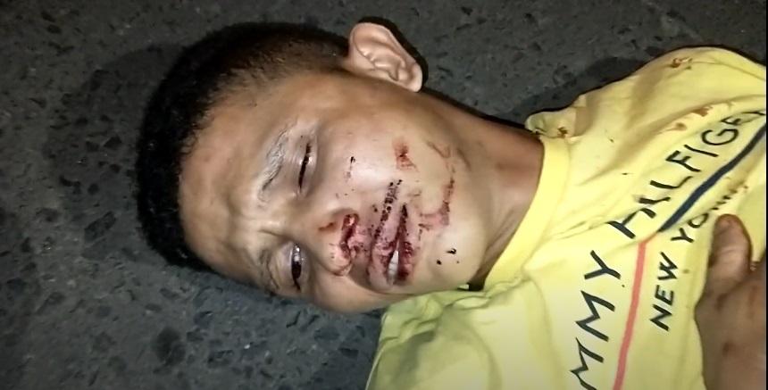 Acusado se fere durante tentativa de assalto e é abandonado pelo comparsa  - Imagem 1