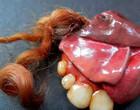 Tumor faz crescer cabelo e dente no ovário ou testículo; vídeo!
