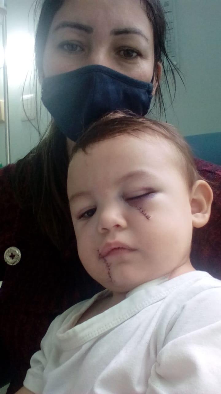 Henryque sofreu cortes em várias parte do rosto e foi para a UTI - Foto: Reprodução
